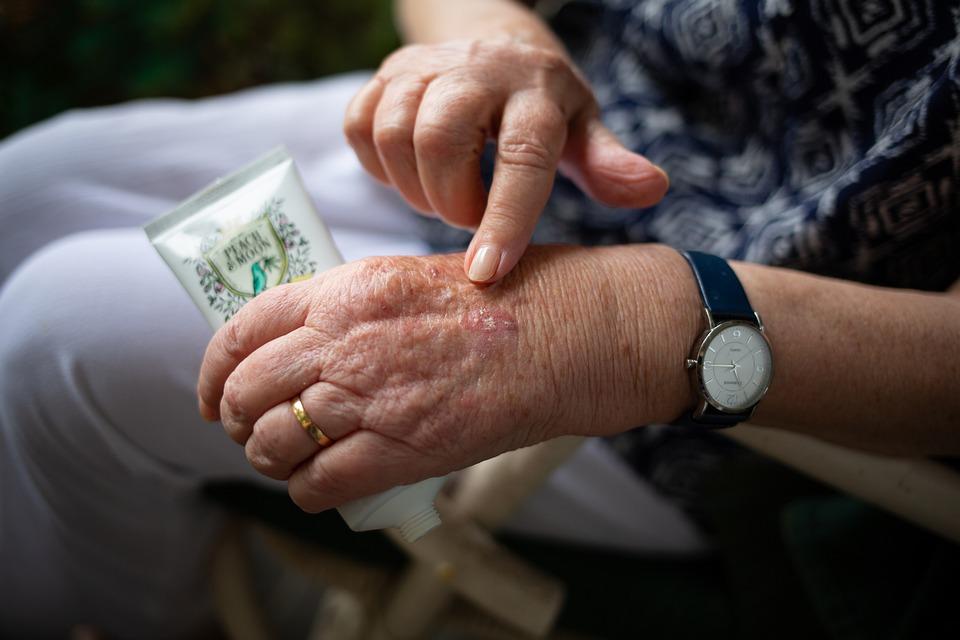 К каким осложнениям может привести ревматоидный артрит?