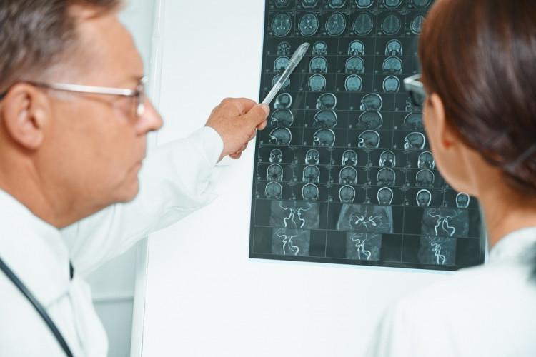 В чем разница между микроинсультом и инсультом?