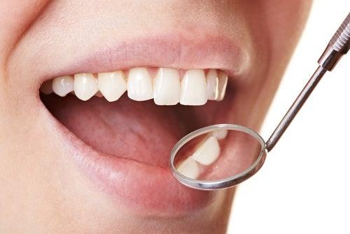 5 способов навсегда удалить зубной налет с зубов