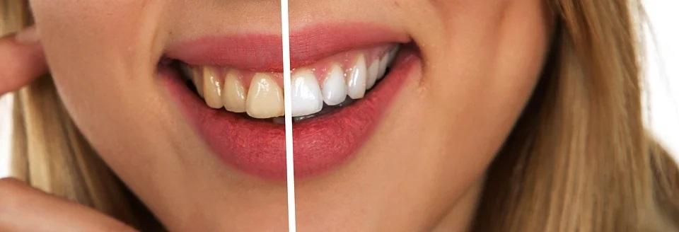 Как отбелить зубы в домашних условиях? Самый простой способ!