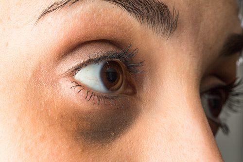 Почему у вас мешки под глазами и как их лечить натуральными средствами