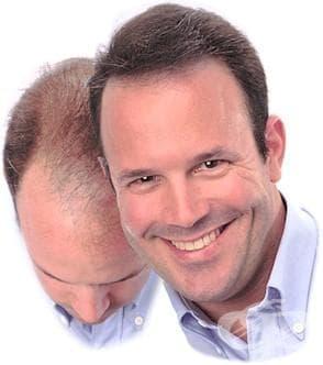 Народное лечение выпадения волос